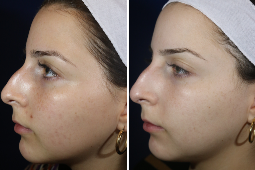 What To Expect When You Laser Away Your Acne Scars